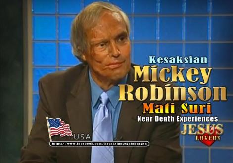 Kesaksian Mickey Robinson Mati Suri_KSB_JPG